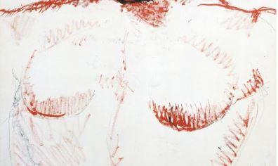 les seins de la femme à la tête rouge de Picasso, épisode sur la radiothérapie